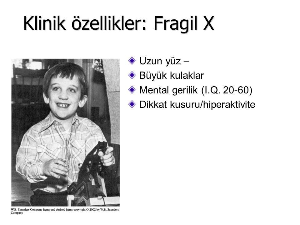 Uzun yüz – Büyük kulaklar Mental gerilik (I.Q. 20-60) Dikkat kusuru/hiperaktivite Klinik özellikler: Fragil X
