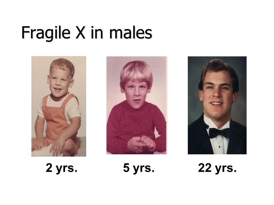 Fragile X in males 2 yrs.5 yrs.22 yrs.