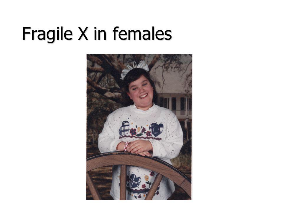 Fragile X in females