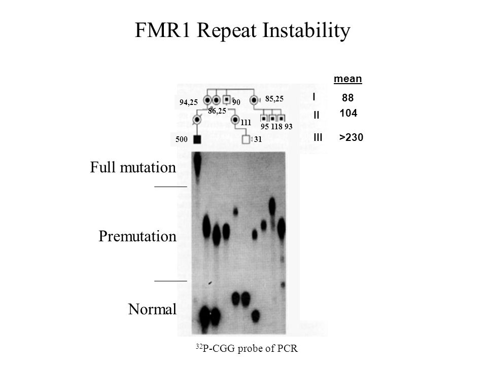 FMR1 Repeat Instability 32 P-CGG probe of PCR 500 94,25 85,25 86,25 90 111 31 95 118 93 Premutation Full mutation Normal I II III mean 88 104 >230