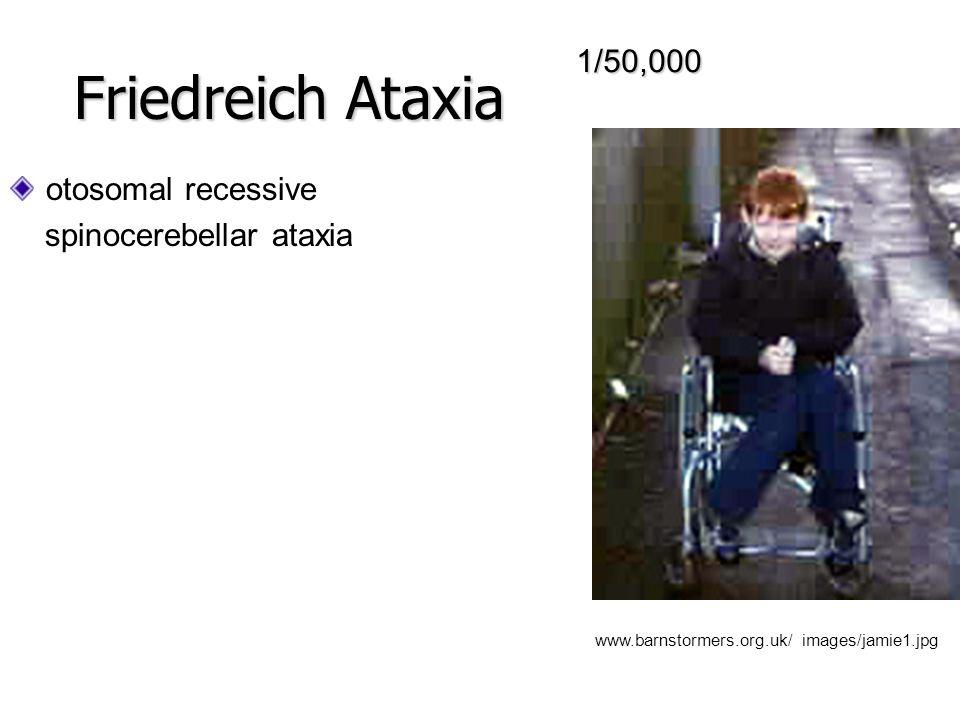 AAG tekrarları intron frataxin de Alel Tipleri: Normal allel - <34 tekrar Taşıyıcı allel – 36-100 tekrar Hasta allel - >100 tekrar Friedreich Ataxia AUGTAA CGG GAA CAGCTG