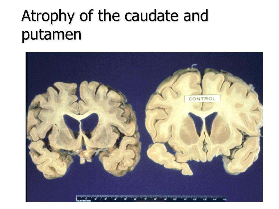 Atrophy of the caudate and putamen