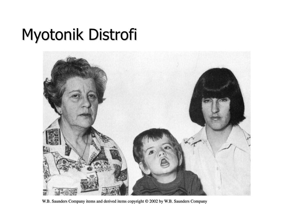 Myotonik Distrofi
