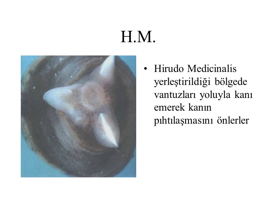 H.M. Hirudo Medicinalis yerleştirildiği bölgede vantuzları yoluyla kanı emerek kanın pıhtılaşmasını önlerler