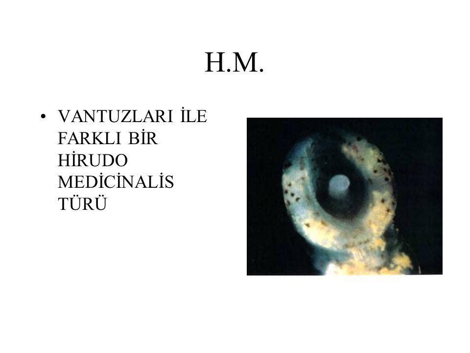 H.M. VANTUZLARI İLE FARKLI BİR HİRUDO MEDİCİNALİS TÜRÜ