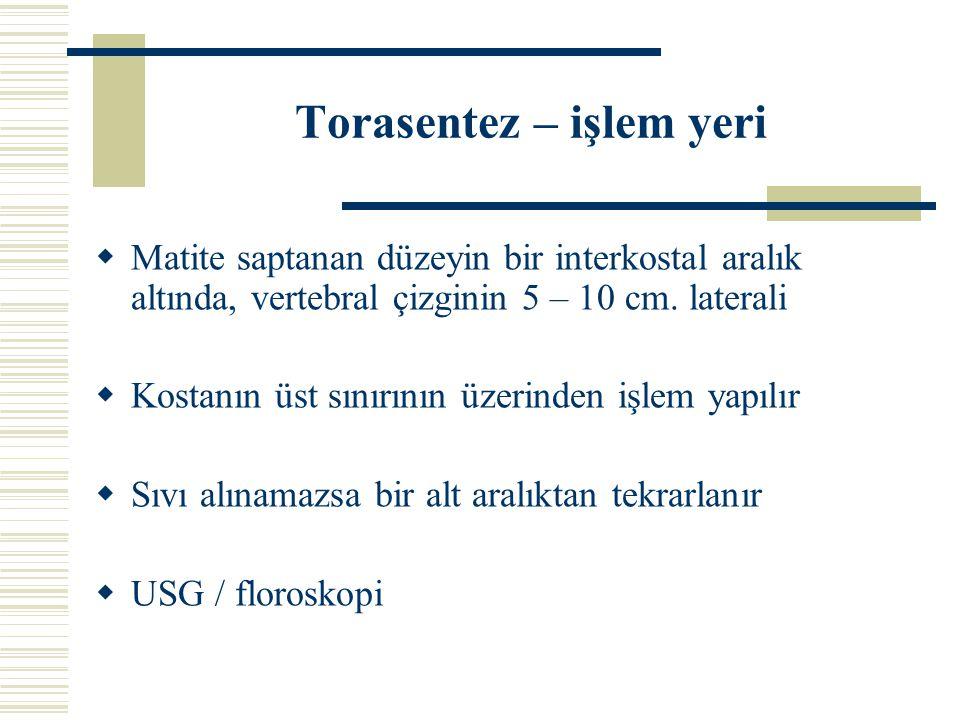 Torasentez – işlem yeri  Matite saptanan düzeyin bir interkostal aralık altında, vertebral çizginin 5 – 10 cm. laterali  Kostanın üst sınırının üzer