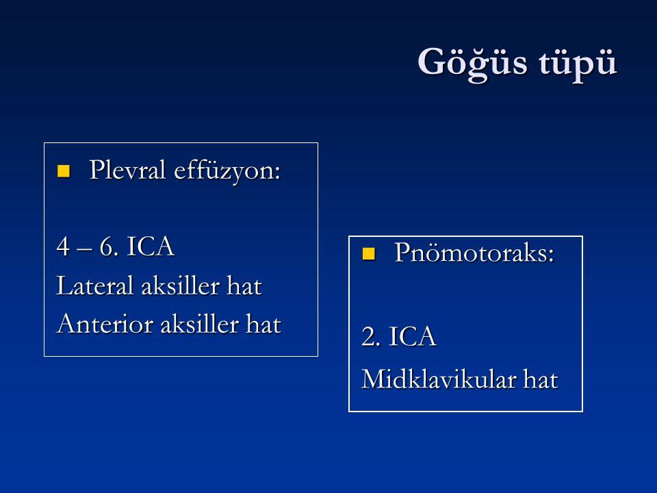 Göğüs tüpü Plevral effüzyon: Plevral effüzyon: 4 – 6. ICA Lateral aksiller hat Anterior aksiller hat Pnömotoraks: 2. ICA Midklavikular hat