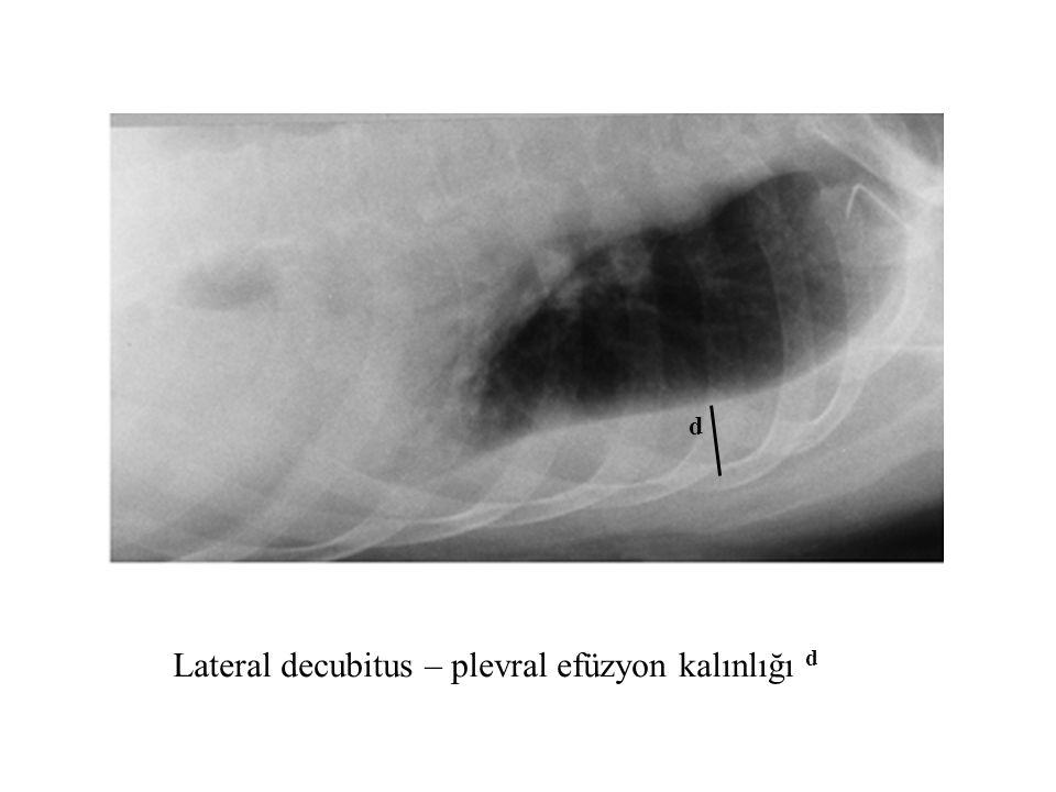 Lateral decubitus – plevral efüzyon kalınlığı d d