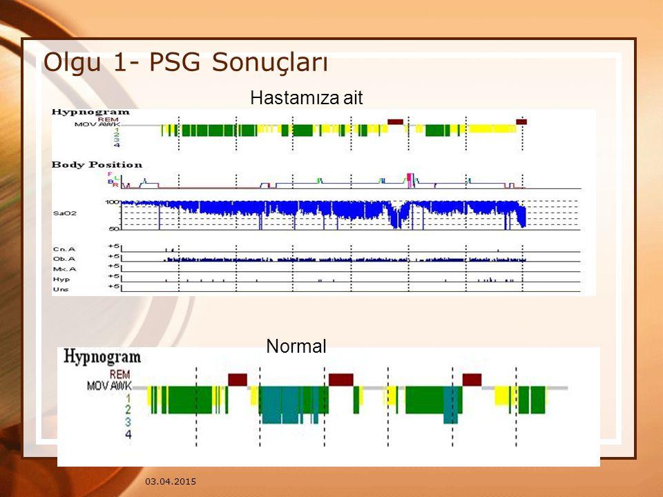 03.04.2015 Olgu 1- PSG Sonuçları Normal Hastamıza ait