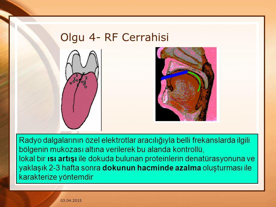 03.04.2015 Olgu 4- RF Cerrahisi Radyo dalgalarının özel elektrotlar aracılığıyla belli frekanslarda ilgili bölgenin mukozası altına verilerek bu aland