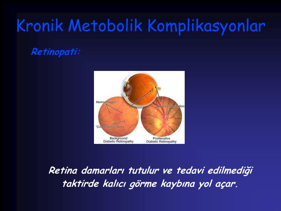 Kronik Metobolik Komplikasyonlar Retinopati: Retina damarları tutulur ve tedavi edilmediği taktirde kalıcı görme kaybına yol açar.