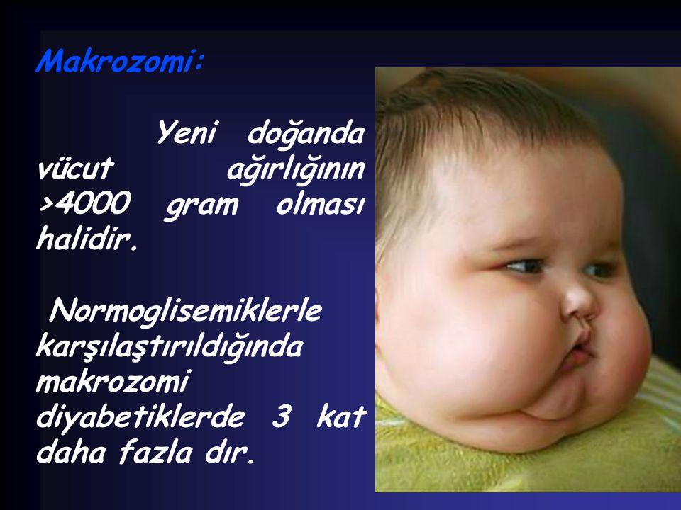 Makrozomi: Yeni doğanda vücut ağırlığının >4000 gram olması halidir. Normoglisemiklerle karşılaştırıldığında makrozomi diyabetiklerde 3 kat daha fazla