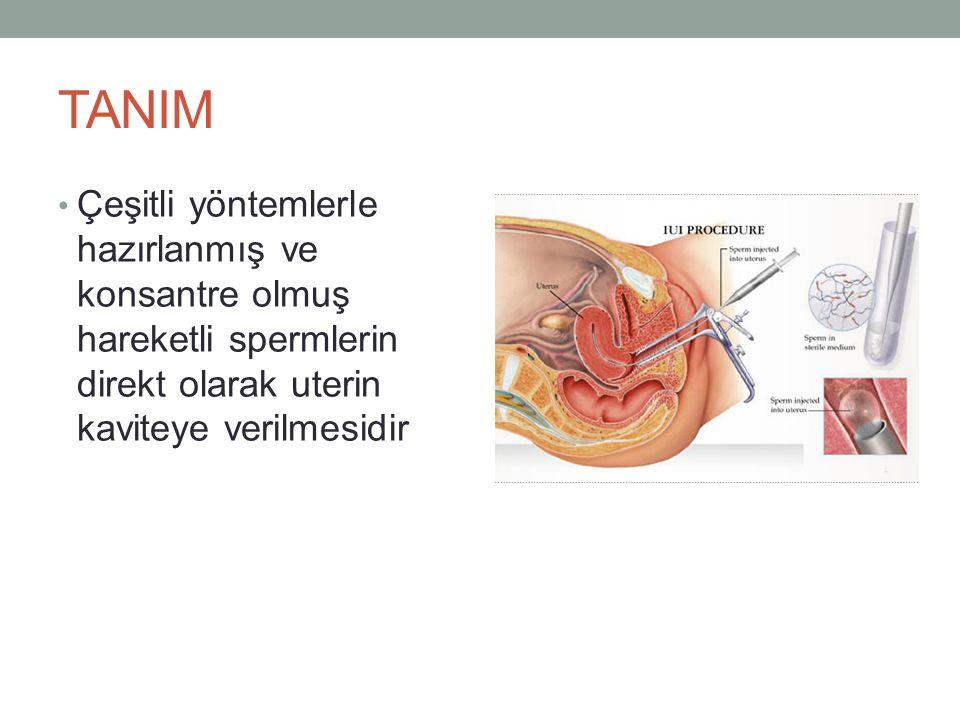 TANIM Çeşitli yöntemlerle hazırlanmış ve konsantre olmuş hareketli spermlerin direkt olarak uterin kaviteye verilmesidir