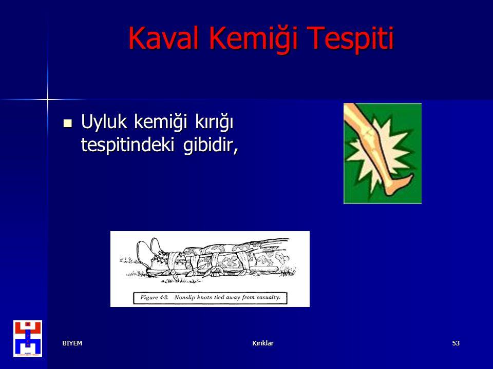 BİYEMKırıklar53 Kaval Kemiği Tespiti Uyluk kemiği kırığı tespitindeki gibidir, Uyluk kemiği kırığı tespitindeki gibidir,