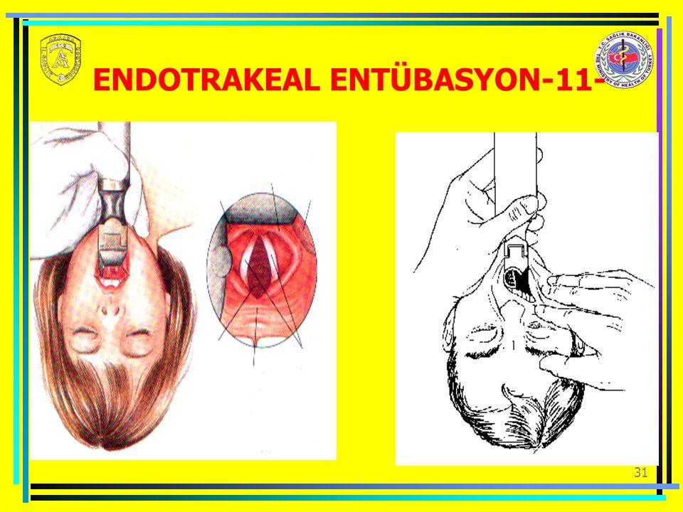 31 ENDOTRAKEAL ENTÜBASYON-11-