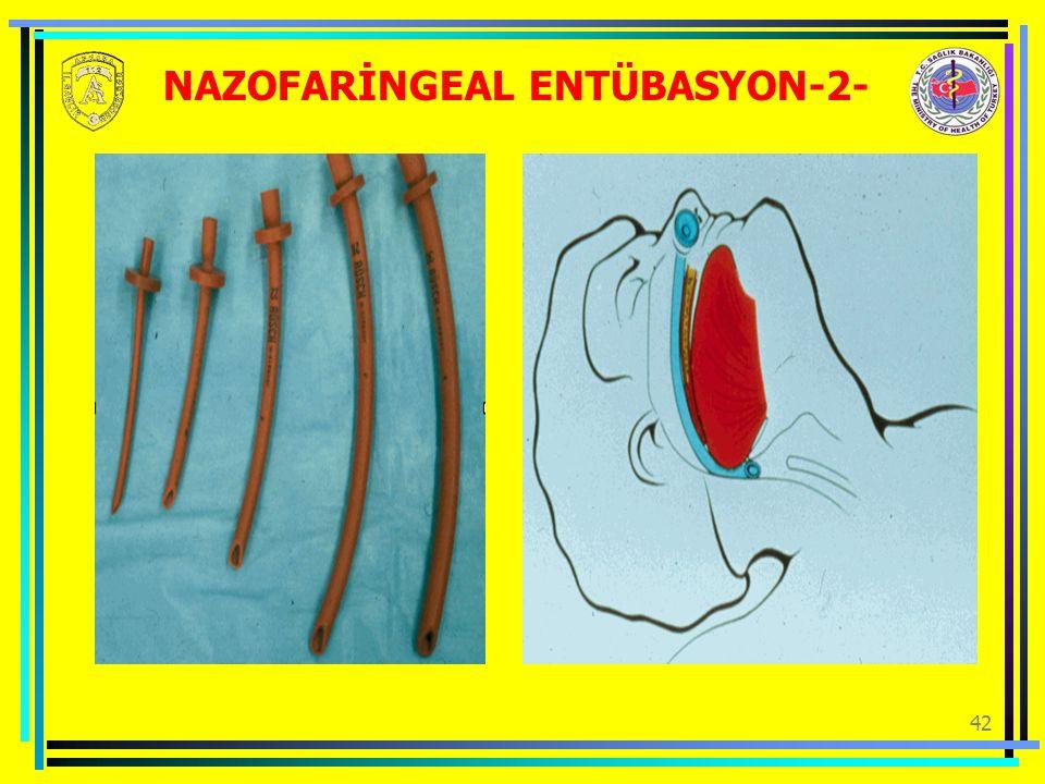 42 NAZOFARİNGEAL ENTÜBASYON-2-