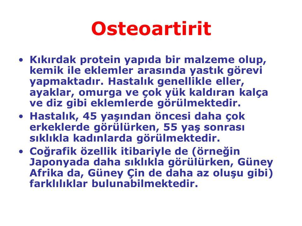 Osteoartirit Kıkırdak protein yapıda bir malzeme olup, kemik ile eklemler arasında yastık görevi yapmaktadır. Hastalık genellikle eller, ayaklar, omur