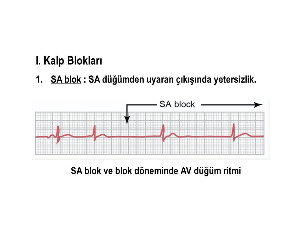 I. Kalp Blokları 1.SA blok : SA düğümden uyaran çıkışında yetersizlik. SA blok ve blok döneminde AV düğüm ritmi