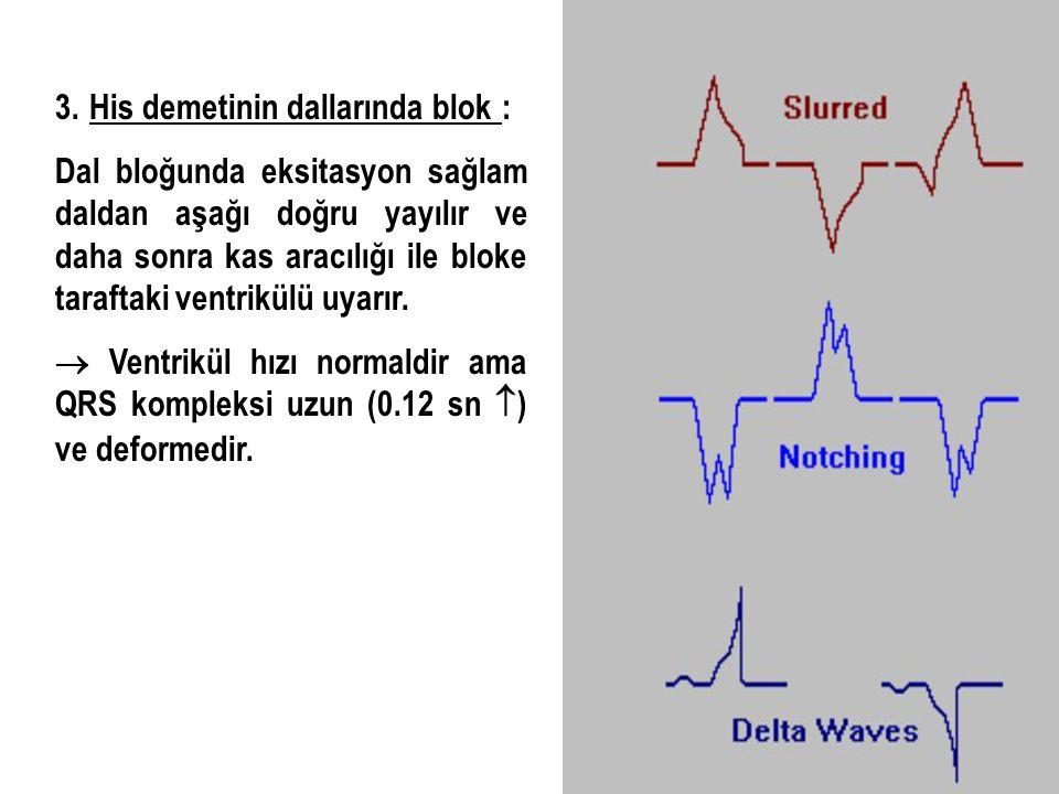 3. His demetinin dallarında blok : Dal bloğunda eksitasyon sağlam daldan aşağı doğru yayılır ve daha sonra kas aracılığı ile bloke taraftaki ventrikül
