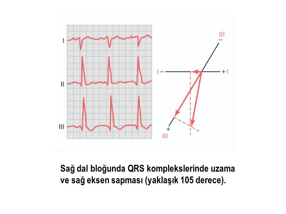 Sağ dal bloğunda QRS komplekslerinde uzama ve sağ eksen sapması (yaklaşık 105 derece).