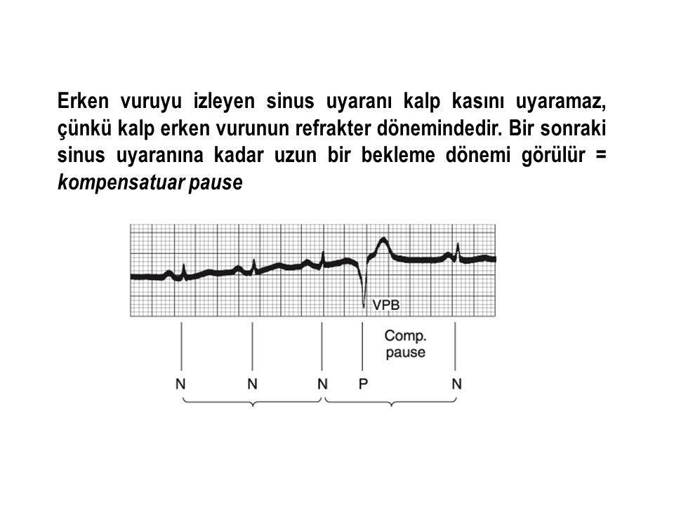 Erken vuruyu izleyen sinus uyaranı kalp kasını uyaramaz, çünkü kalp erken vurunun refrakter dönemindedir. Bir sonraki sinus uyaranına kadar uzun bir b