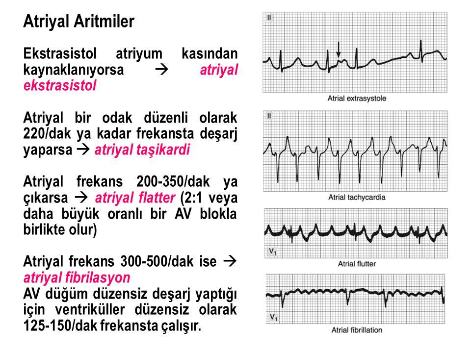 Atriyal Aritmiler Ekstrasistol atriyum kasından kaynaklanıyorsa  atriyal ekstrasistol Atriyal bir odak düzenli olarak 220/dak ya kadar frekansta deşa