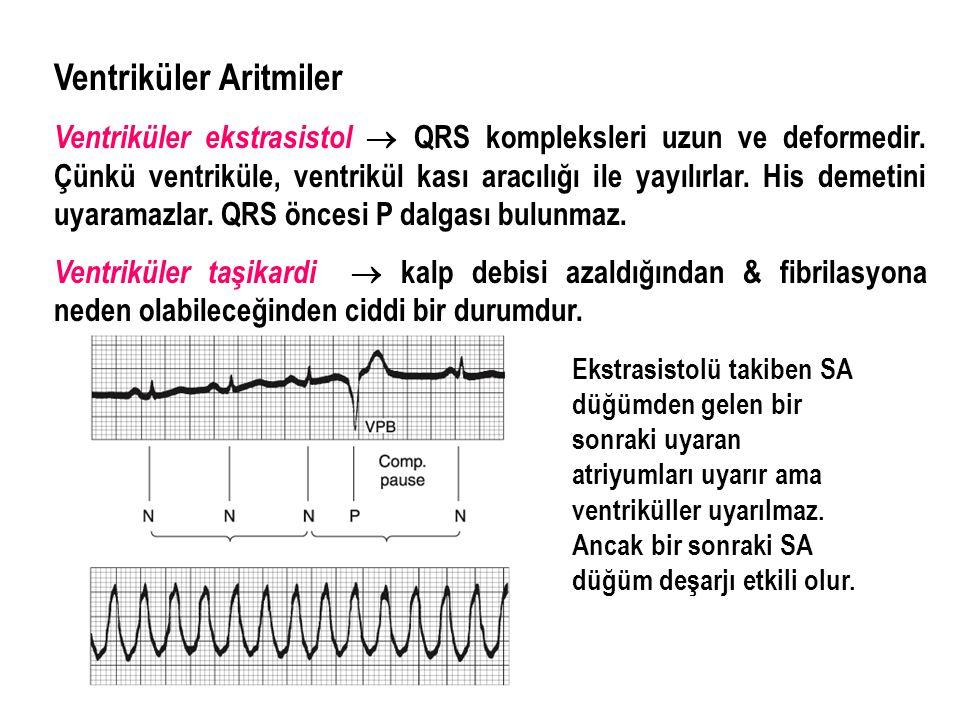 Ventriküler Aritmiler Ventriküler ekstrasistol  QRS kompleksleri uzun ve deformedir. Çünkü ventriküle, ventrikül kası aracılığı ile yayılırlar. His d