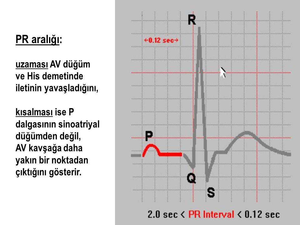 PR aralığı: uzaması AV düğüm ve His demetinde iletinin yavaşladığını, kısalması ise P dalgasının sinoatriyal düğümden değil, AV kavşağa daha yakın bir