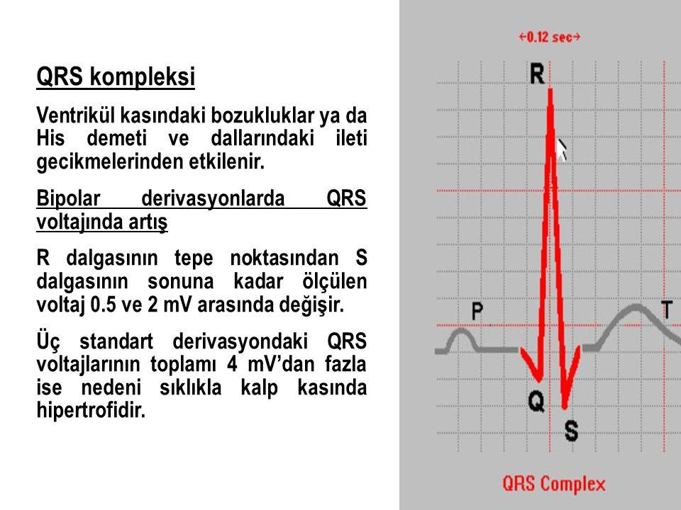 QRS kompleksi Ventrikül kasındaki bozukluklar ya da His demeti ve dallarındaki ileti gecikmelerinden etkilenir. Bipolar derivasyonlarda QRS voltajında