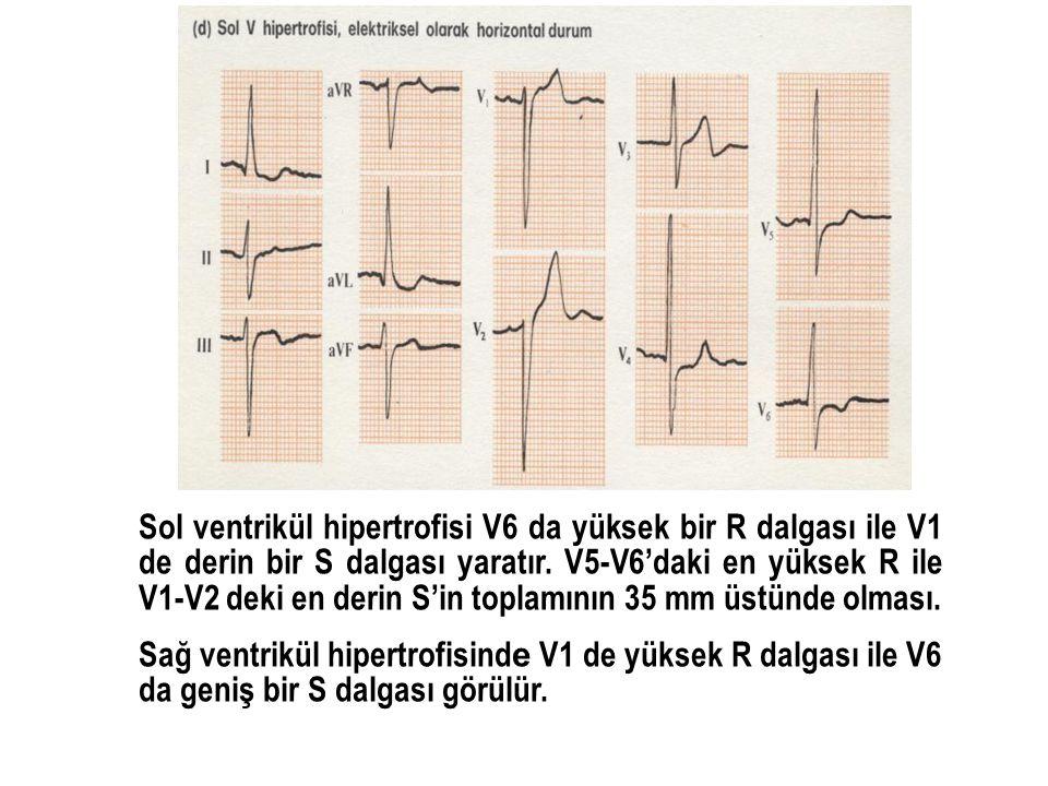 Sol ventrikül hipertrofisi V6 da yüksek bir R dalgası ile V1 de derin bir S dalgası yaratır. V5-V6'daki en yüksek R ile V1-V2 deki en derin S'in topla