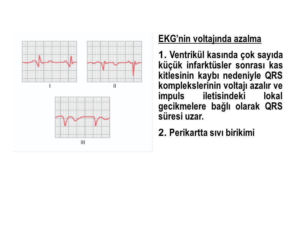 EKG'nin voltajında azalma 1. Ventrikül kasında çok sayıda küçük infarktüsler sonrası kas kitlesinin kaybı nedeniyle QRS komplekslerinin voltajı azalır