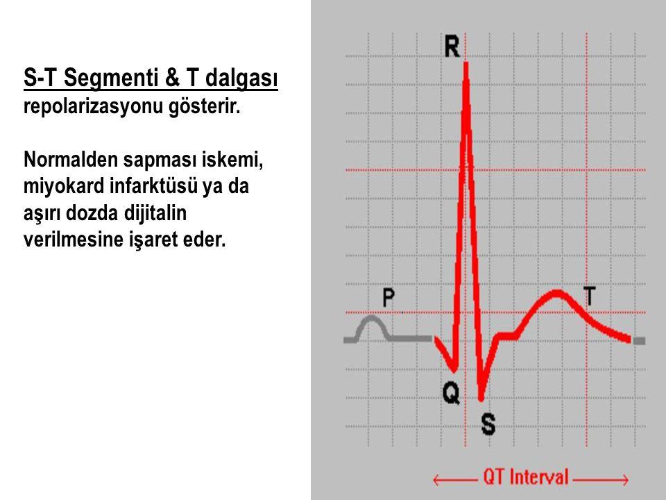 S-T Segmenti & T dalgası repolarizasyonu gösterir. Normalden sapması iskemi, miyokard infarktüsü ya da aşırı dozda dijitalin verilmesine işaret eder.
