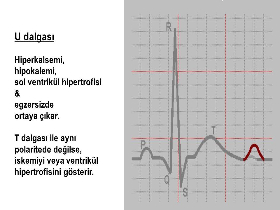 U dalgası Hiperkalsemi, hipokalemi, sol ventrikül hipertrofisi & egzersizde ortaya çıkar. T dalgası ile aynı polaritede değilse, iskemiyi veya ventrik