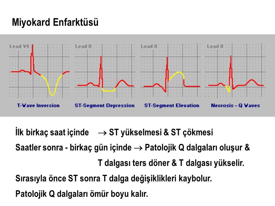 Miyokard Enfarktüsü İlk birkaç saat içinde  ST yükselmesi & ST çökmesi Saatler sonra - birkaç gün içinde  Patolojik Q dalgaları oluşur & T dalgası t
