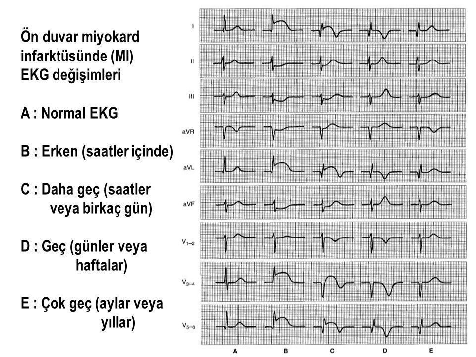 Ön duvar miyokard infarktüsünde (MI) EKG değişimleri A : Normal EKG B : Erken (saatler içinde) C : Daha geç (saatler veya birkaç gün) D : Geç (günler