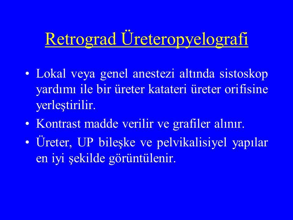 Retrograd Üreteropyelografi Lokal veya genel anestezi altında sistoskop yardımı ile bir üreter katateri üreter orifisine yerleştirilir. Kontrast madde