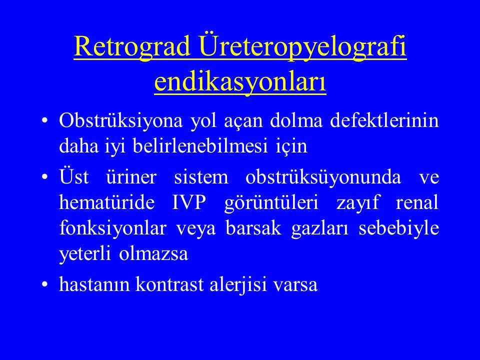 Retrograd Üreteropyelografi endikasyonları Obstrüksiyona yol açan dolma defektlerinin daha iyi belirlenebilmesi için Üst üriner sistem obstrüksüyonund