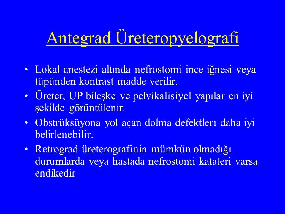 Antegrad Üreteropyelografi Lokal anestezi altında nefrostomi ince iğnesi veya tüpünden kontrast madde verilir. Üreter, UP bileşke ve pelvikalisiyel ya