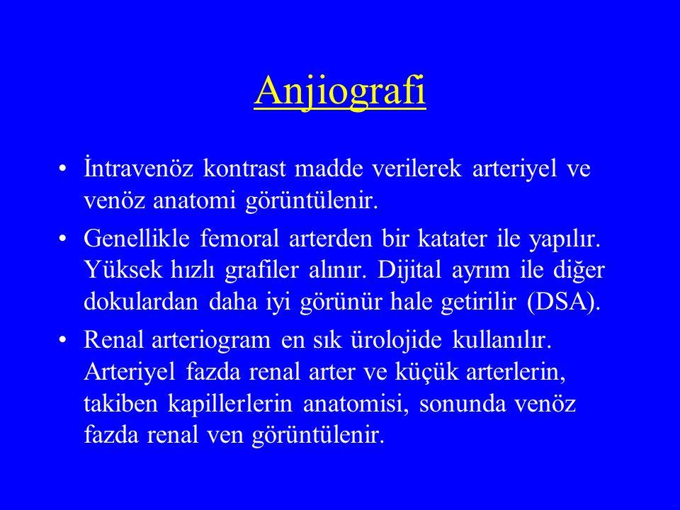 Anjiografi İntravenöz kontrast madde verilerek arteriyel ve venöz anatomi görüntülenir. Genellikle femoral arterden bir katater ile yapılır. Yüksek hı
