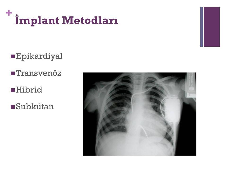 + İ mplant Metodları Epikardiyal Transvenöz Hibrid Subkütan