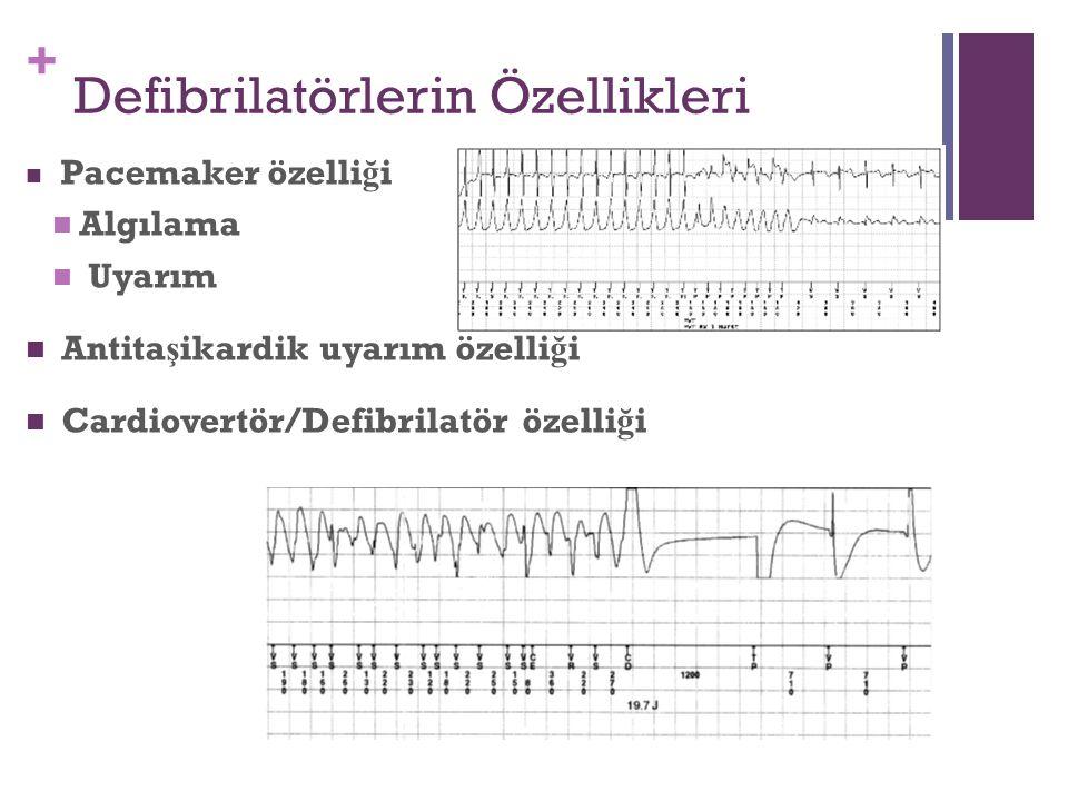 + Defibrilatörlerin Özellikleri Pacemaker özelli ğ i Algılama Uyarım Antita ş ikardik uyarım özelli ğ i Cardiovertör/Defibrilatör özelli ğ i