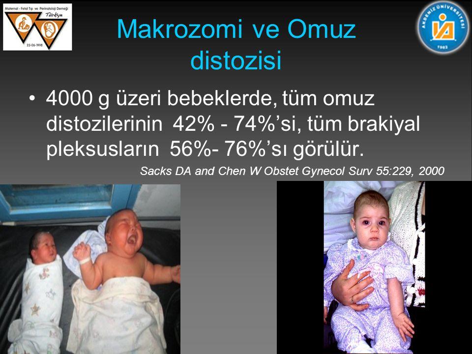 Makrozomi ve Omuz distozisi 4000 g üzeri bebeklerde, tüm omuz distozilerinin 42% - 74%'si, tüm brakiyal pleksusların 56%- 76%'sı görülür.