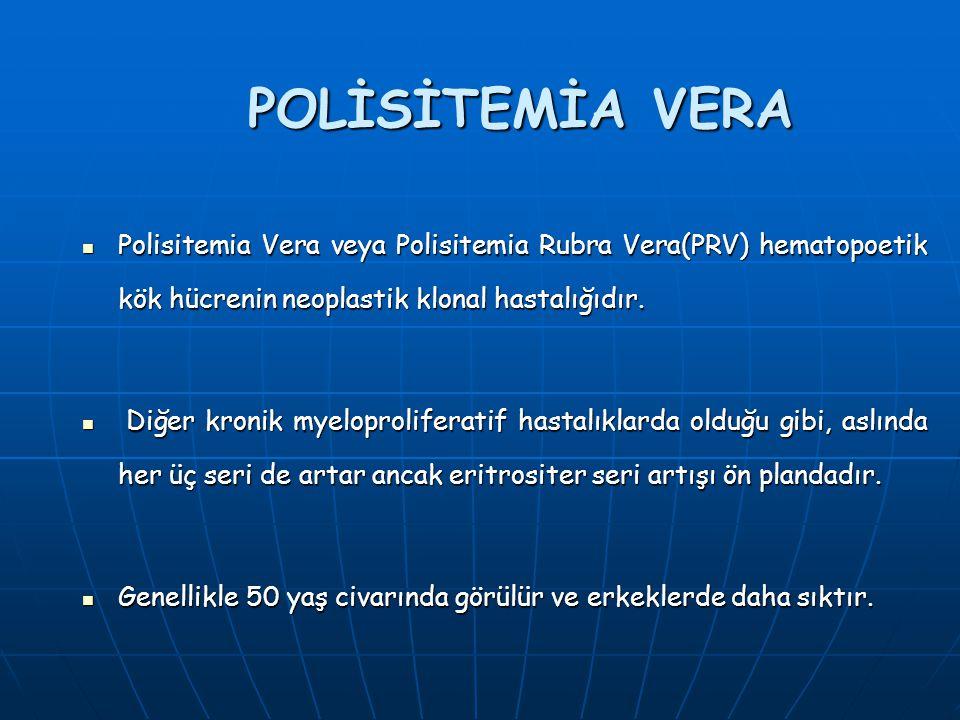 POLİSİTEMİA VERA Polisitemia Vera veya Polisitemia Rubra Vera(PRV) hematopoetik kök hücrenin neoplastik klonal hastalığıdır.