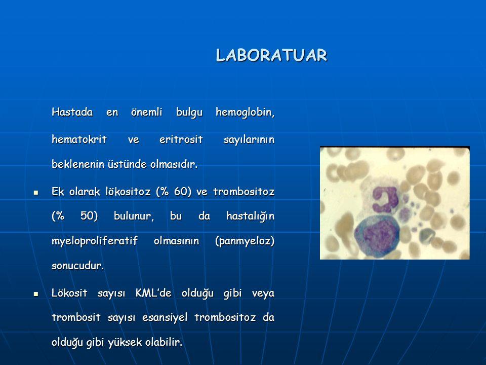 LABORATUAR Hastada en önemli bulgu hemoglobin, hematokrit ve eritrosit sayılarının beklenenin üstünde olmasıdır. Ek olarak lökositoz (% 60) ve trombos