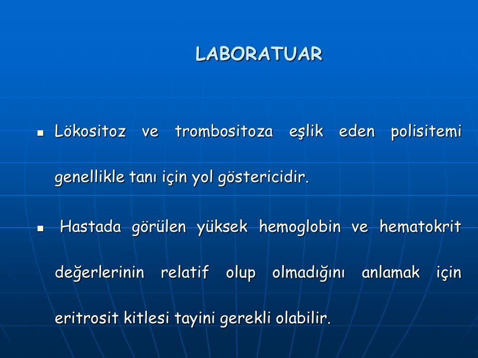 LABORATUAR Lökositoz ve trombositoza eşlik eden polisitemi genellikle tanı için yol göstericidir. Lökositoz ve trombositoza eşlik eden polisitemi gene