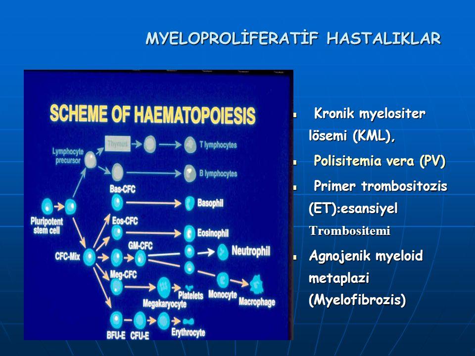 Kronik myelositer lösemi (KML), Kronik myelositer lösemi (KML), Polisitemia vera (PV) Polisitemia vera (PV) Primer trombositozis (ET) : esansiyel Trombositemi Primer trombositozis (ET) : esansiyel Trombositemi Agnojenik myeloid metaplazi (Myelofibrozis) Agnojenik myeloid metaplazi (Myelofibrozis)