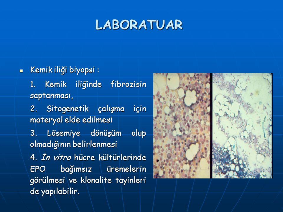 LABORATUAR Kemik iliği biyopsi : Kemik iliği biyopsi : 1. Kemik iliğinde fibrozisin saptanması, 2. Sitogenetik çalışma için materyal elde edilmesi 3.