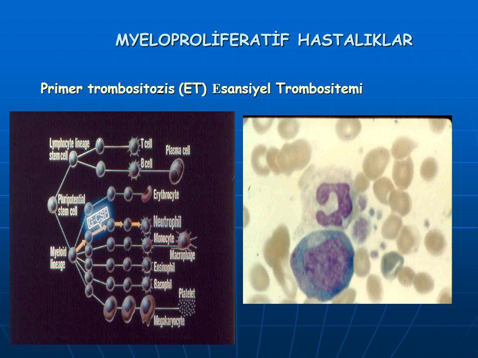 MYELOPROLİFERATİF HASTALIKLAR Primer trombositozis (ET) E sansiyel Trombositemi