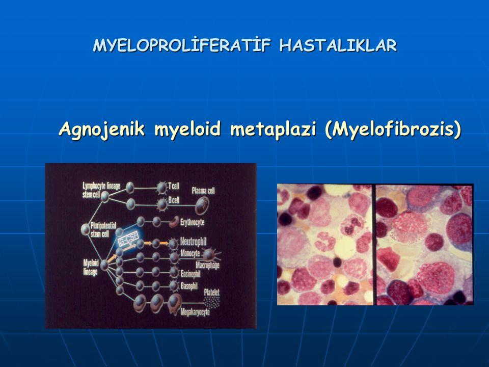 MYELOPROLİFERATİF HASTALIKLAR Agnojenik myeloid metaplazi (Myelofibrozis) Agnojenik myeloid metaplazi (Myelofibrozis)