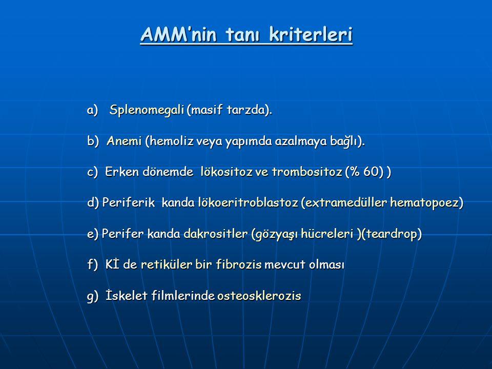 AMM'nin tanı kriterleri a) Splenomegali (masif tarzda). b) Anemi (hemoliz veya yapımda azalmaya bağlı). c) Erken dönemde lökositoz ve trombositoz (% 6